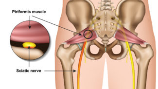 Diagram of the anatomy of the hip joint and the muscles